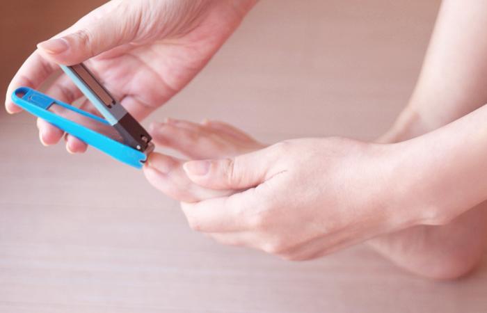 巻き爪のセルフケア方法