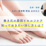 巻き爪の原因とセルフケア、知っておきたい治し方とは